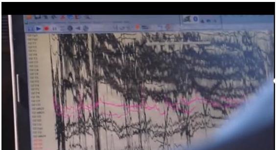 EEG im Elektroauto